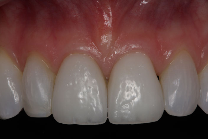 Anterior Porcelain Crowns and Veneers 1 after
