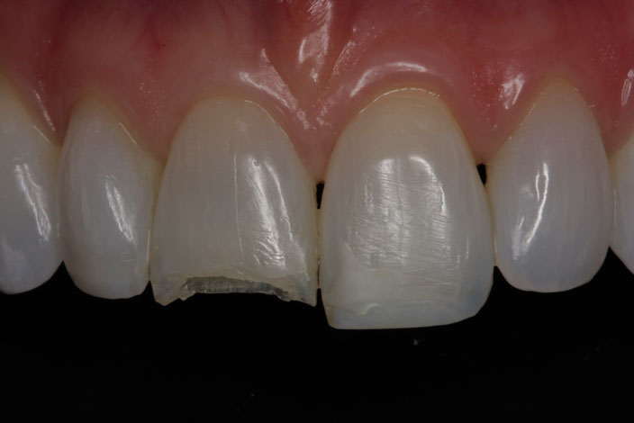 Anterior Porcelain Crowns and Veneers 1 before