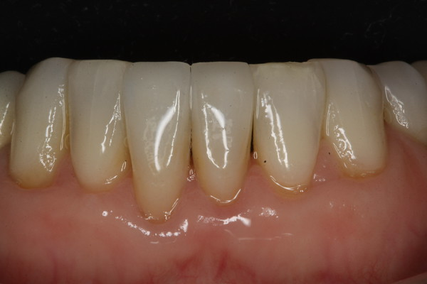 Anterior veneer VC 2 after