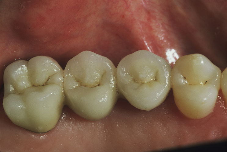 Patient after dental bridge - D. Ian Bell, DDS in Bellevue, WA