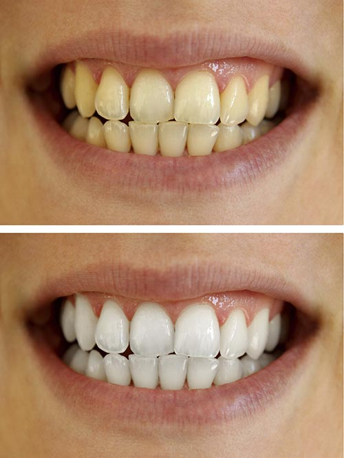 A before and after image of a patients teeth whitening process.