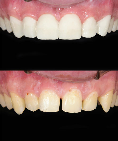 Dental veneer care at D. Ian Bell, D.D.S..